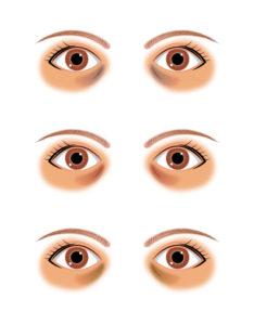 くま 目の下 種類