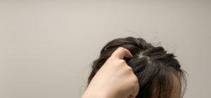 女性 汗 頭皮